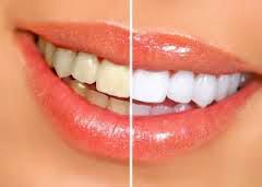 Міфи про зуби