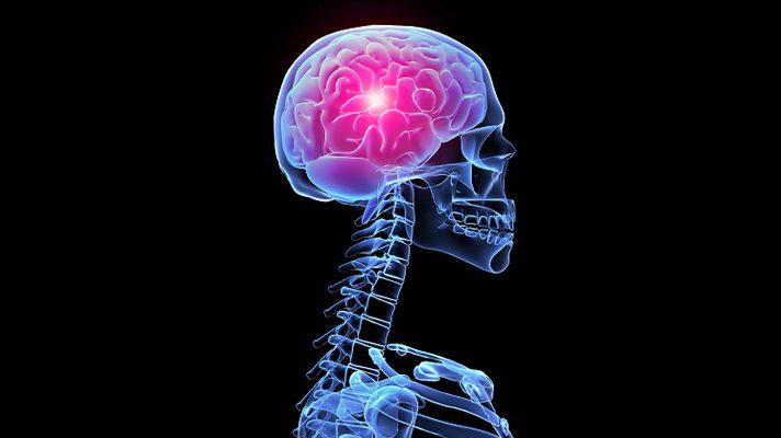 Наслідки струсу мозку